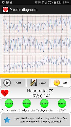 Cardiac diagnosis (arrhythmia) ss3