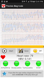 App Cardiac diagnosis (heart rate, arrhythmia) APK for Windows Phone