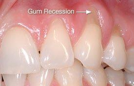 Gum Recession - Abrasion.