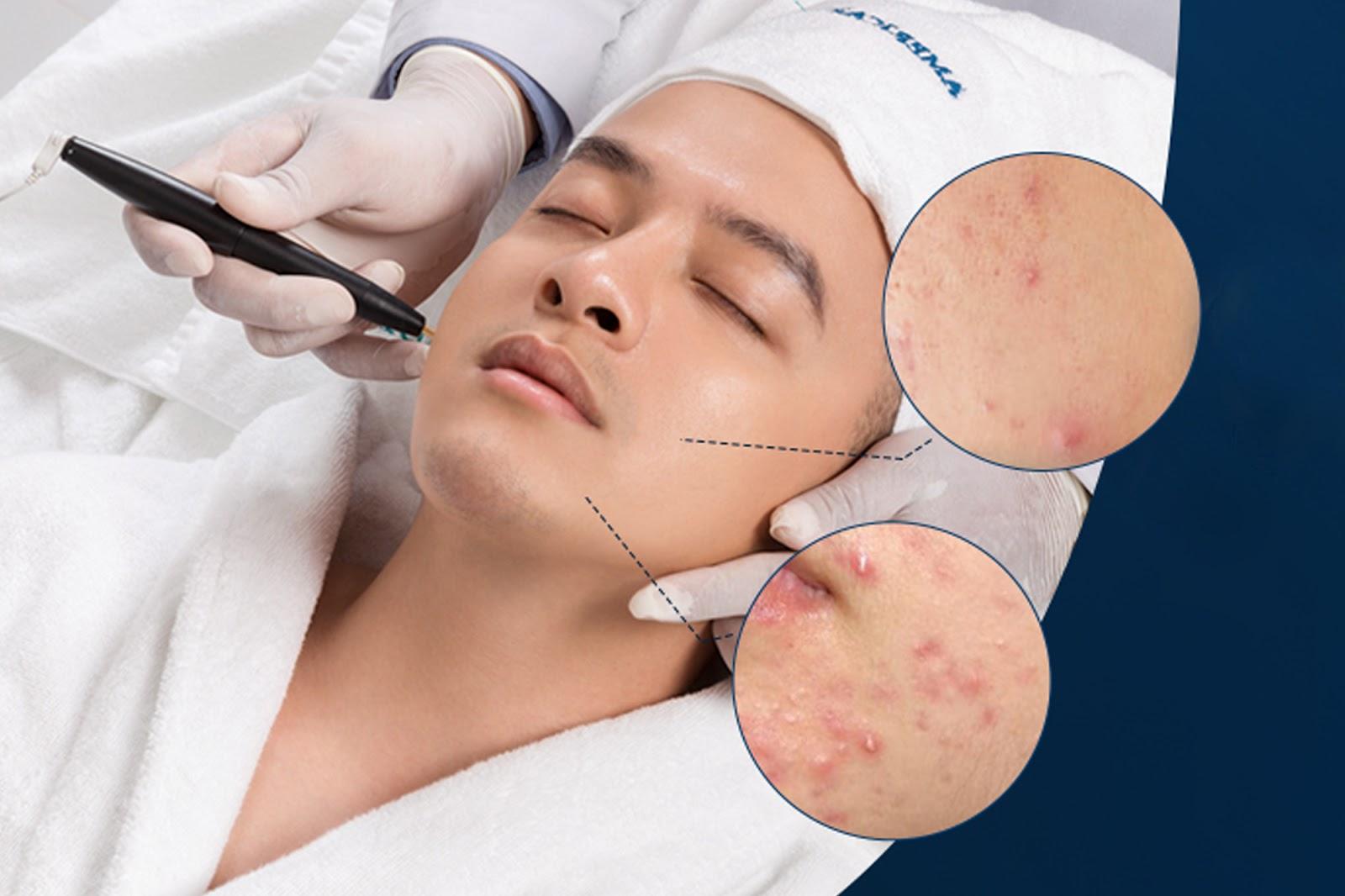 Điều trị sẹo mụn bằng laser