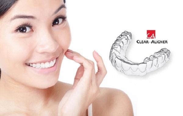 Niềng răng trong suốt Clear Align tiết kiệm và thẩm mỹ