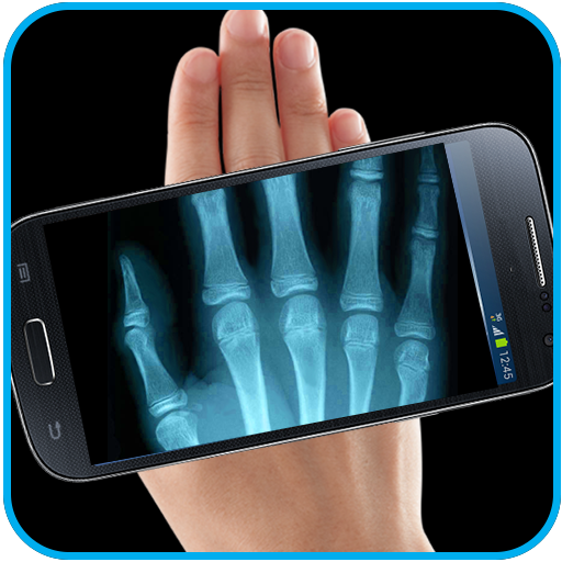 Real Xray Camera Scanner Prank (app)