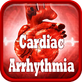 Cardiac Arrhythmia Disease
