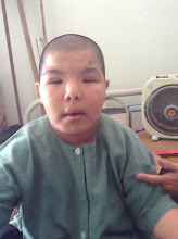 Photo: Tang Minh Thanh - Male - DOB 3/28/2004 - Down syndrone