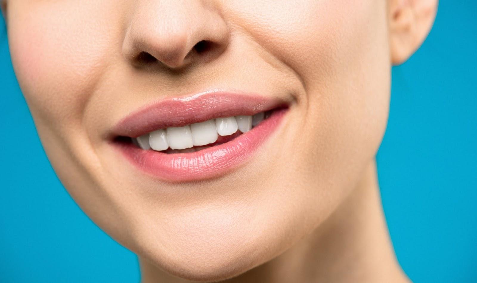 smile - dental implants