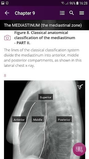 Discover Radiology: Chest X-Ray Interpretation screenshots 2
