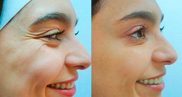 Get rid of your wrinkles using these simple tips