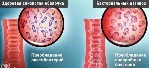 лактобактерии во влагалище