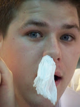 Photo: He had a bloody nose.