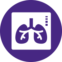 Simplified XRay Lung Illustration