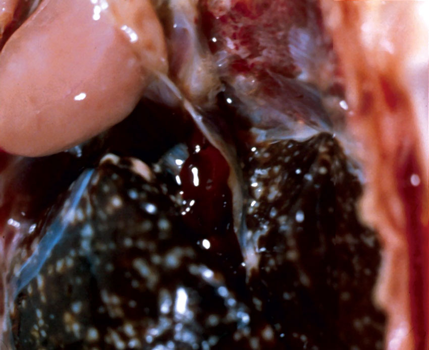 Multifocal granulomatous lesions in the liver of a sandhill crane (Grus canadensis) caused by Mycobacterium spp.