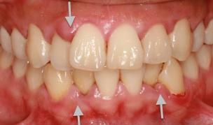 Image result for gum swelling