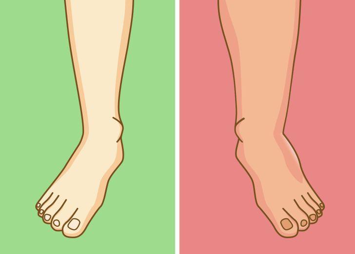 Thói quen ngồi vắt chéo chân có thể gây tê liệt thần kinh - ảnh 5