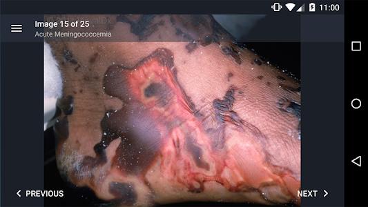VisualDx screenshot 4
