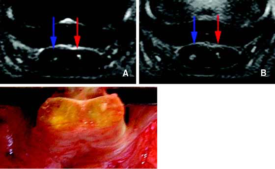 (A) STIR and (B) PD images of the deep digital flexor tendon acquired using an ONI OrthOne (1.0 T).