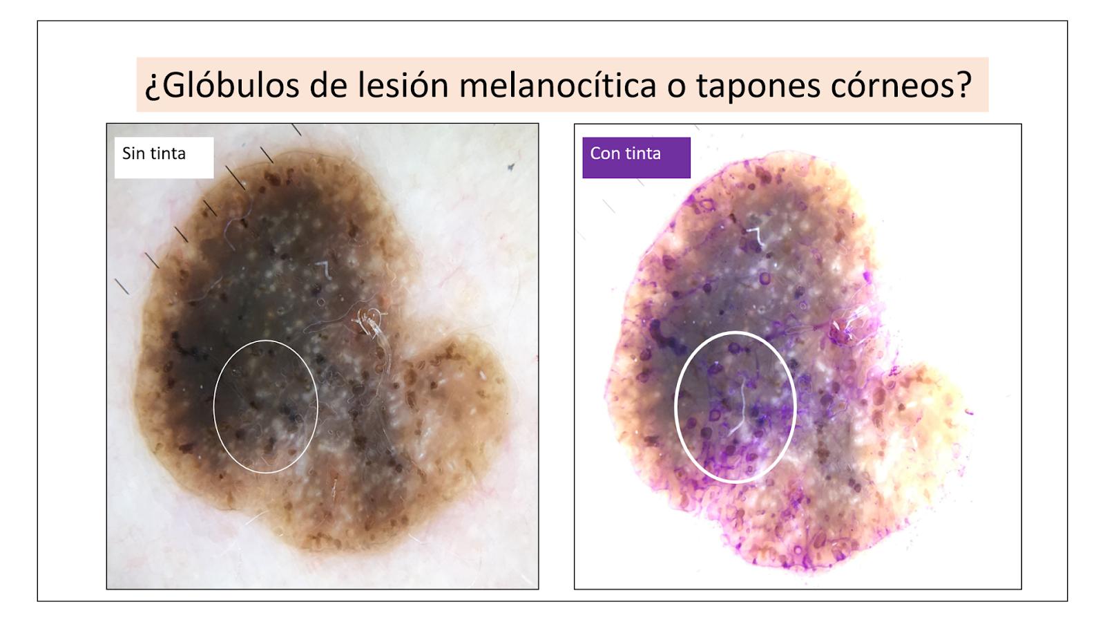 Si dudamos sobre si esta lesión tiene tapones córneos de queratosis seborreica o glóbulos de lesión melanocítica, podemos hacer el test de la tinta. Con la tinta los tapones córneos se tiñen, pero los glóbulos no se tiñen: