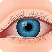 Eye Infections Home Remedies