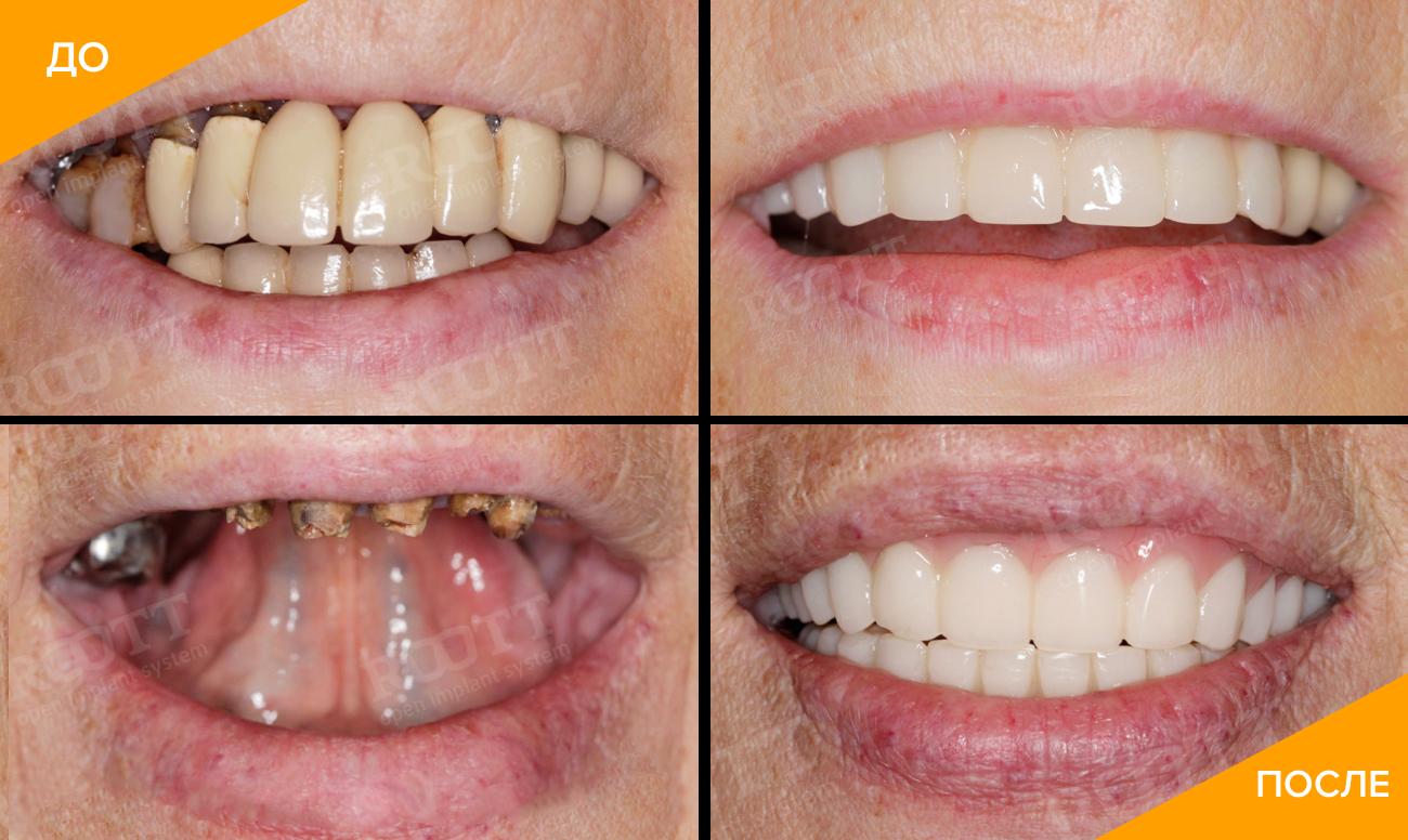 Фото пациента до и после установки протеза на имплантах Roott