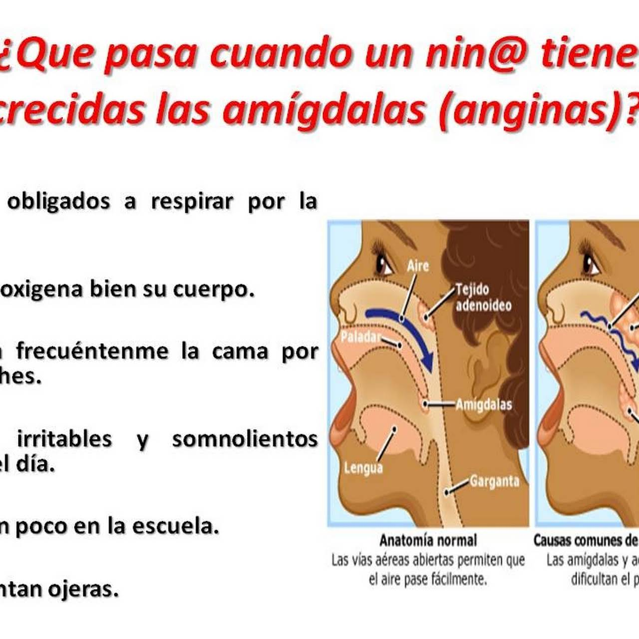 Dorable Anatomía De La Garganta Y Las Amígdalas Ideas - Anatomía de ...