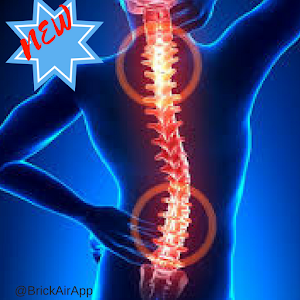 Sciatica Treatment -  Methode