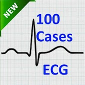 ECG New Clinical Cases