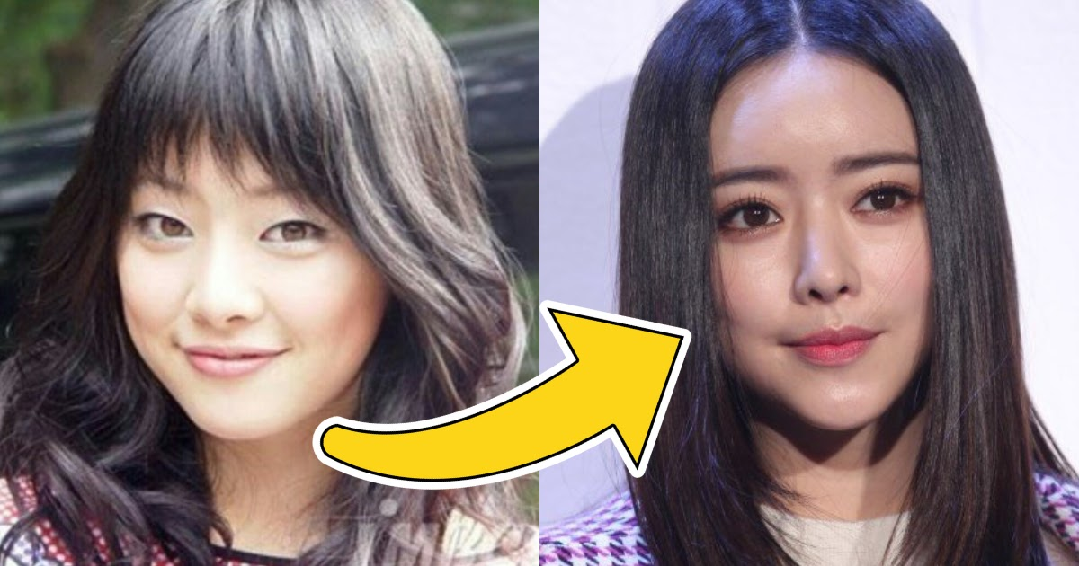 Actress Hong Soo Ah Confesses That Her Plastic Surgery Helped Catapult Her Acting Career
