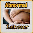 Abnormal Labour