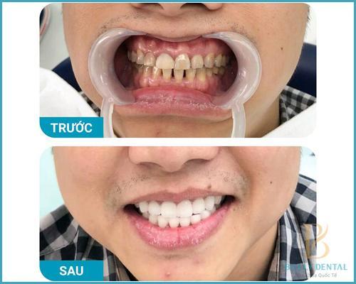 Cách chăm sóc răng sau khi bọc răng sứ - Nha khoa Bally