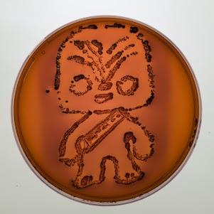 EMB + Escherichia coli
