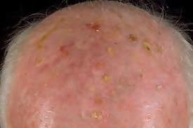 How to Treat Actinic Keratosis with Apple Cider Vinegar and Other Methods 1