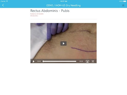 Dry Needling Clinic Companion- screenshot thumbnail