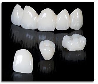 Quy trình bọc răng hàm ĐẢM BẢO không gây đau nhức 1