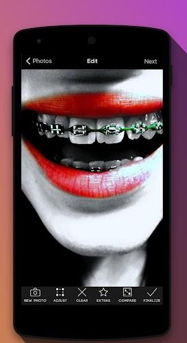 Braces teeth booth Camera