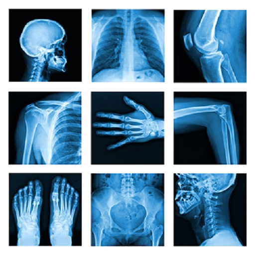 Medical X-Ray Interpretation with 100+ Cases
