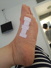 Photo: foot after walking in the heat - in fact it all started from standing up teaching in the heat