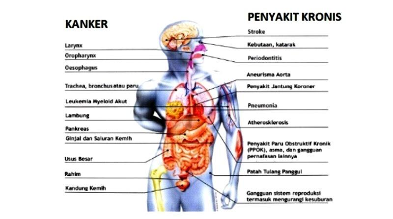 15 Penyakit Akibat Rokok
