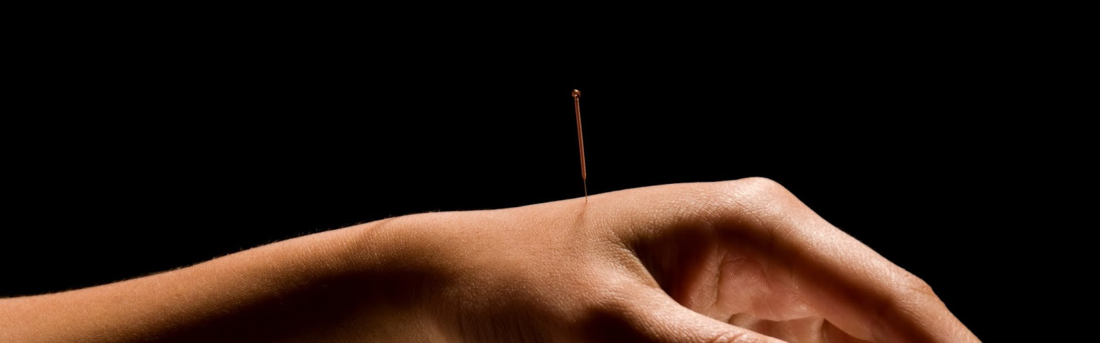 an acupuncture needle in a handle