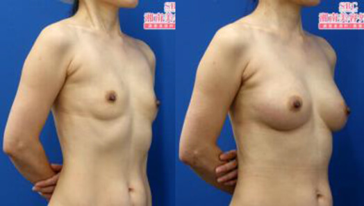 ライポマティック併用コンデンスリッチ豊胸 術後3ヶ月