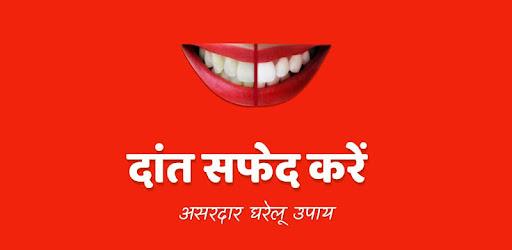 Teeth Whitening Tips Hindi Apps On Google Play