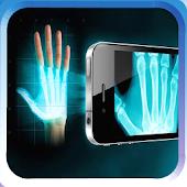 X-ray Body Scan Joke