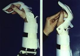 A splint commonly used for a few weeks after surgery for patients who suffer from a flexor tendon laceration.
