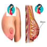 BREAST MASTITIS AND TREATMENT