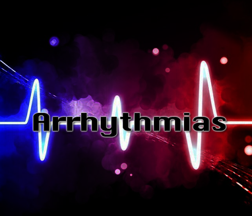 Arrhythmias and Dysrhythmias  screenshots 2