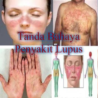 Tanda Bahaya Penyakit Lupus