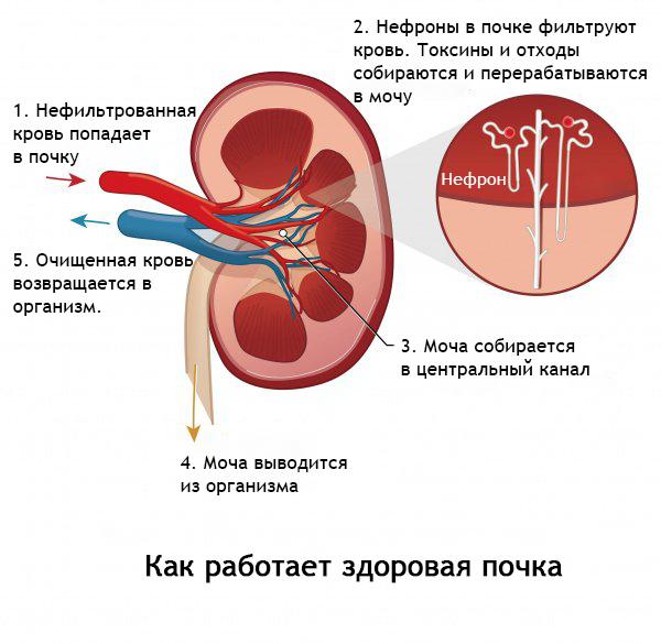 Как работает здоровая почка: 1. Кровь попадает в почку 2. Нефроны фильруют кровь. Тоскины и отходы собираются и перерабатываются в мочу. 3. Моча собирается в центральный канал. 4. Моча выводится из организма. 5. Очищенная кровь возврашается в организм.