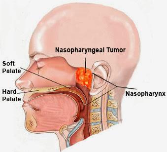 Manfaat Laminine Untuk Penderita Kanker Nasofaring