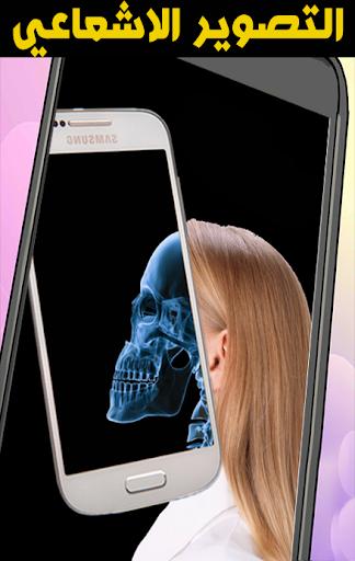 حول هاتفك لتصوير اشعاعي- prank