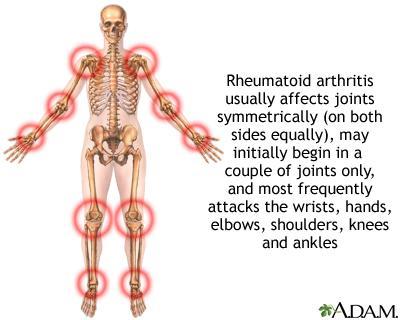 http://umm.edu/health/medical/reports/articles/~/media/ADAM/Images/en/17128.ashx