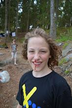 Photo: Morten kom væltende ned til lejrbålet og ramte en spade