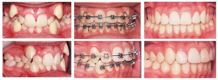 Có nên niềng răng không? Niềng răng có lợi ích gì? 1